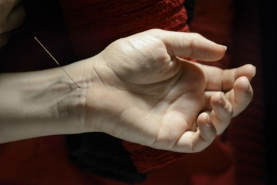 House of Fertility and Healing_Acupuncture Treatment on Wrist